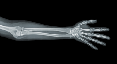 Image of X-rayed arm