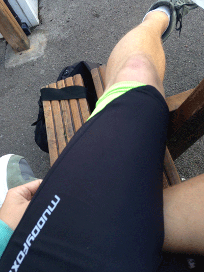 Image of Kristian's rippling leg